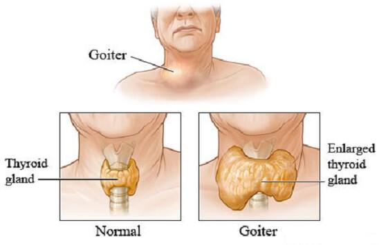 В этой стадии коксартроз может вызывать постоянное напряжение мышц в области тазобедренного сустава, используя для этой цели